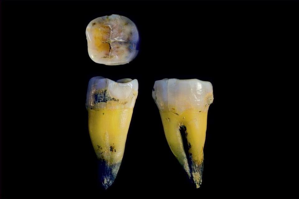 Molar de Homo sapiens parente de neandertal
