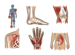 workplace injuries medical illustration