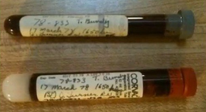 A sample of Bundy's blood/DNA taken March 17, 1978