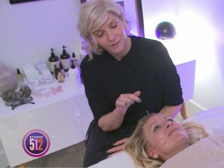 COSMETIC ACUPUNCTURE WITH STEPHANIE OF STUDIO 512