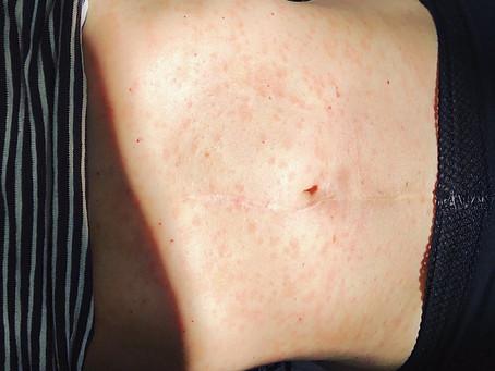 FULL BODY RASH:PITYRIASIS ROSEA & CHINESE MEDICINE