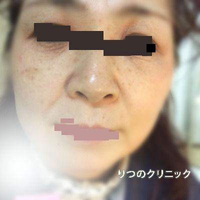 大人のアトピー性皮膚炎、53歳女性の3ケ月後は目の周りが炎症がひきました。