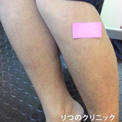 ステロイド未使用の内服薬により体質改善ができたアトピー性皮膚炎治療の10ケ月後の写真です。