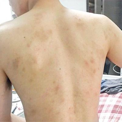 アトピー性皮膚炎への治療で、ステロイド未使用の内服薬によるアトピー性皮膚炎の体質改善ができてきました