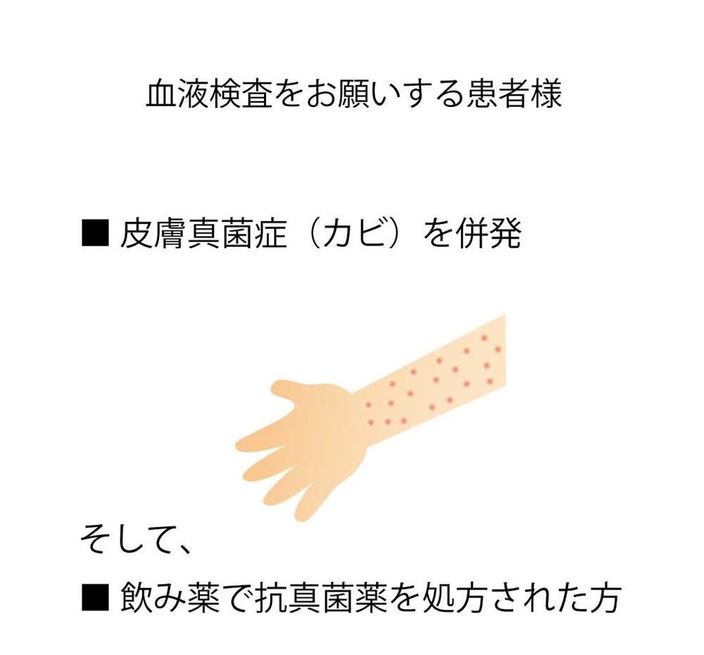 皮膚真菌症