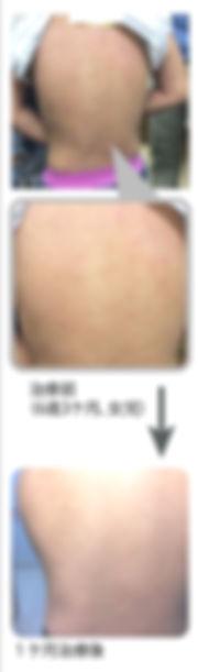 外用ステロイド薬を原則使わない小児アトピー性皮膚炎治療の写真です。