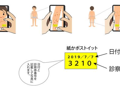 小児アトピー性皮膚炎の写真撮影