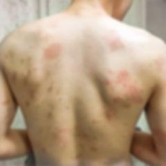 人のアトピー性皮膚炎、ステロイド未使用の内服薬によるアトピー性皮膚炎の体質改善前の写真です。