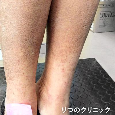 ステロイド未使用の内服薬による体質改善ができました。アトピー性皮膚炎治療の3ケ月後の写真です。