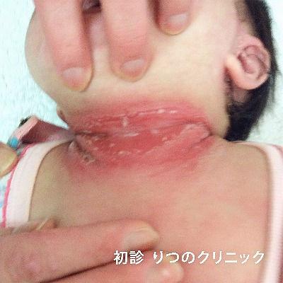熱傷様皮膚症候群、ブドウ球菌の感染が原因となる疾患です。他院さまからの紹介で当院を受診されました。