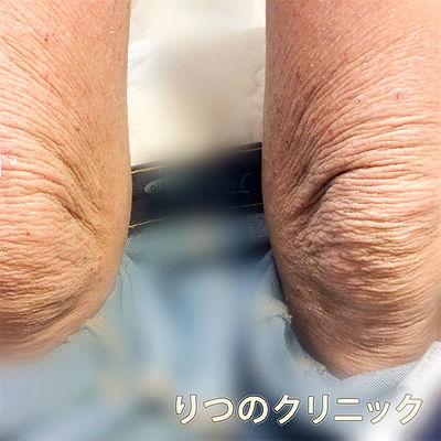 ステロイド未使用の内服薬によるアトピー性皮膚炎の体質改善前の初診時の写真です。