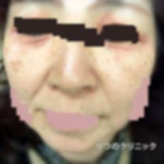 大人のアトピー性皮膚炎、53歳女性の治療前は目の周りが炎症。ステロイド未使用の内服薬によるアトピー性皮膚炎の体質改善前の写真です。