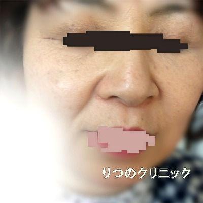 大人のアトピー性皮膚炎、5ケ月後は目の周りが炎症が見えなくなりました。