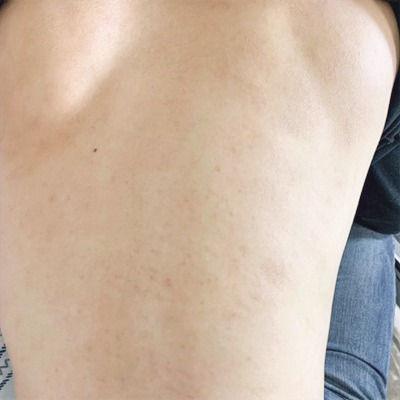 ステロイド未使用の内服薬によるアトピー性皮膚炎の体質改善ができてきました