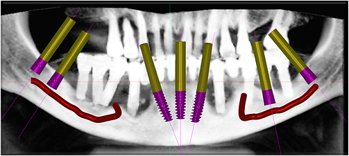Pyramidion alternative to Jaw Bone Grafting