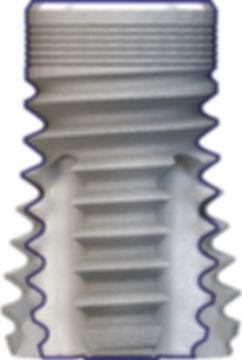patented ultrashort dental implant