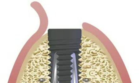 alveolar bone necrosis prevention