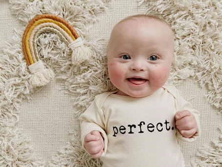 Down Syndrome Explained in Fewer than 140 Characters