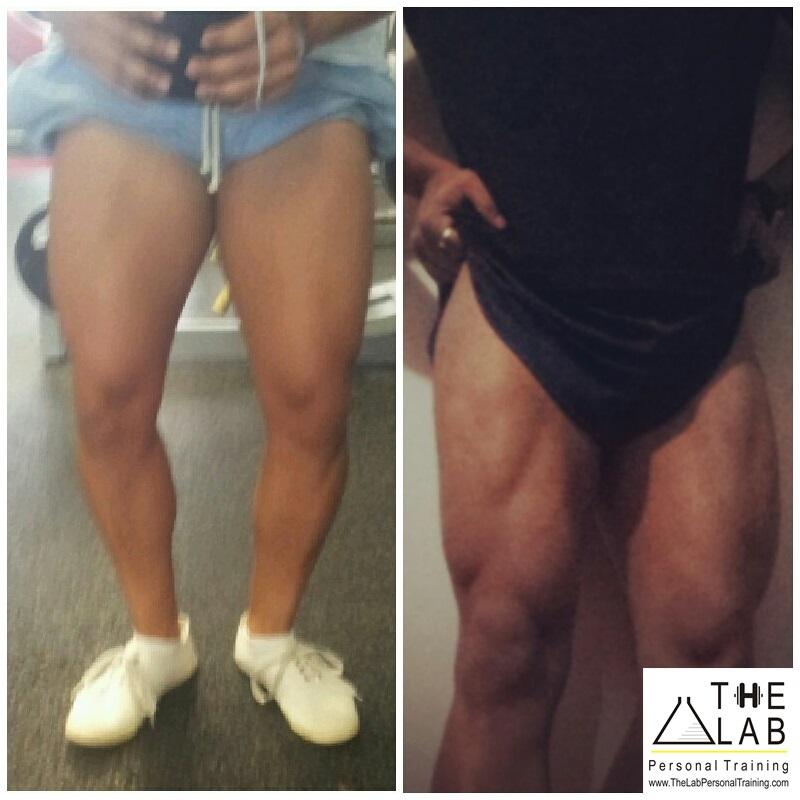 Franz - Hypertrophy - Quads