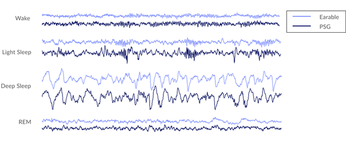 Earable's brain activity measurement compared to PSG's