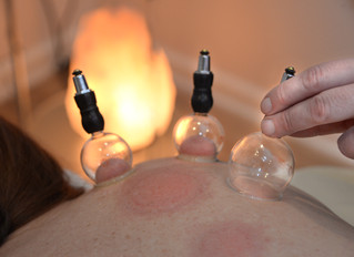 Cupping Therapy - What It Is, Benefits, and Side Effects