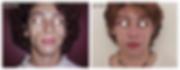 הזרקת שומן עצמי לפנים לפני אחרי מנתח פלס