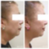 ניתוח מתיחת פנים וצוואר דר קוגן לאוניד מ