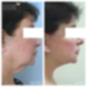 מתיחת פנים וצוואר ניתוח פלסטי דר לאוניד