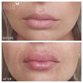 עיצוב שפתיים מיד בסיום הטיפול מנתח פלסטי