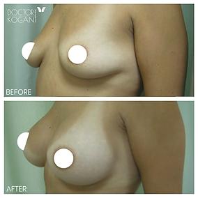 ניתוח הגדלת חזה מושלם מנתח פלסטי מקצועי