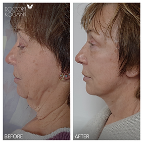 מתיחת פנים וצוואר ניתוח פלסטי לאוניד קוג