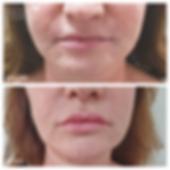 עיצוב שפתיים עיבוי שפתיים מנתח פלסטי לאו