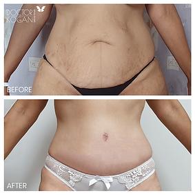 ניתוח מתיחת בטן ושאיבת שומן מהירכיים מנת