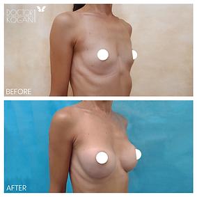 ניתוח הגדלת חזה ניתוח פלסטי מנתח פלסטי מ
