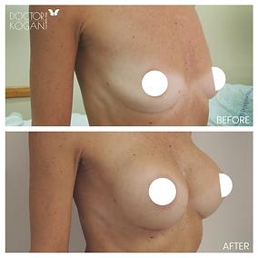 הגדלת חזה ניתוח דר לאוניד קוגן מנתח פלסט