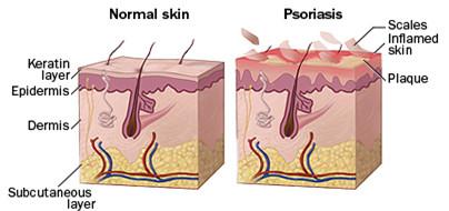 Normal skin vs Psoriasis