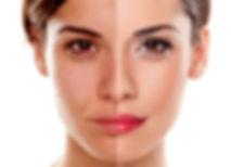 Comparison portrait of a woman without a