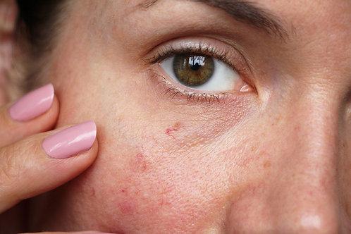 Tratamiento Manchas Faciales Mesoterapia con ácido Tranexámico y Luz Pulsada