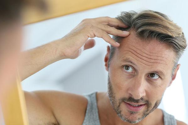 alopecia-androgénica.jpg