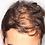 Thumbnail: Tratamiento de regeneración capilar para Alopecia Androgénica