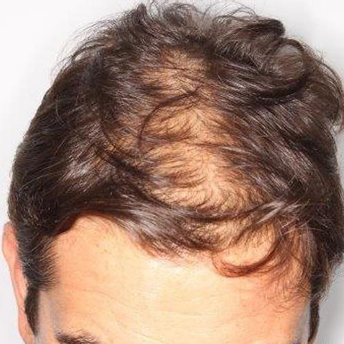 Tratamiento de regeneración capilar para Alopecia Androgénica