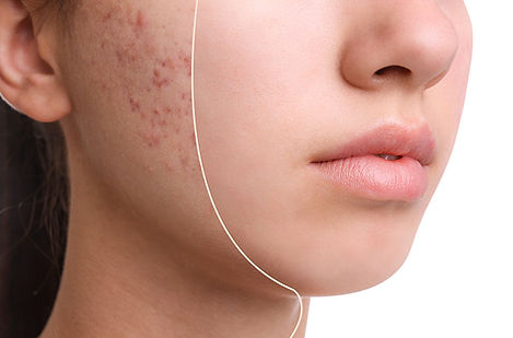 facial-acne-scar-remocal.jpeg