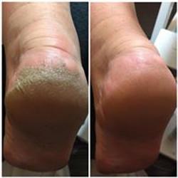 Hard skin removal