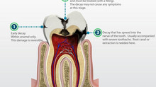 Stages of Tooth Decay - Dentist Richardson Tx