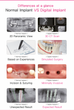 Dentist in Richardson Texas explains the purpose of a dental implant