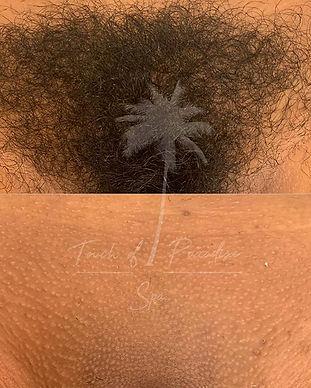 brazilian wax hair removal