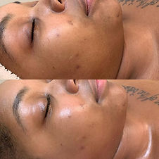 Semi Monthly Facial