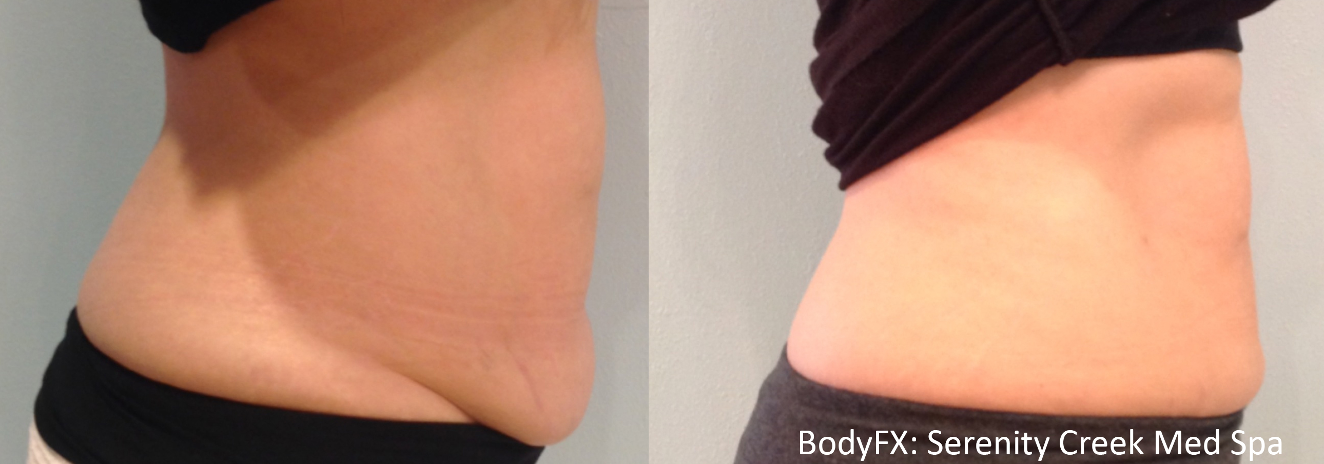 BodyFX_Before&After_009