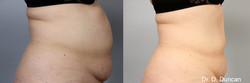 BodyFX_Before&After_005