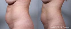 BodyFX_Before&After_004